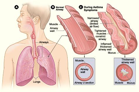asthma_nhlbi.nih.gov