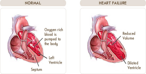 Congestive heart failure_www.terumoheart.com